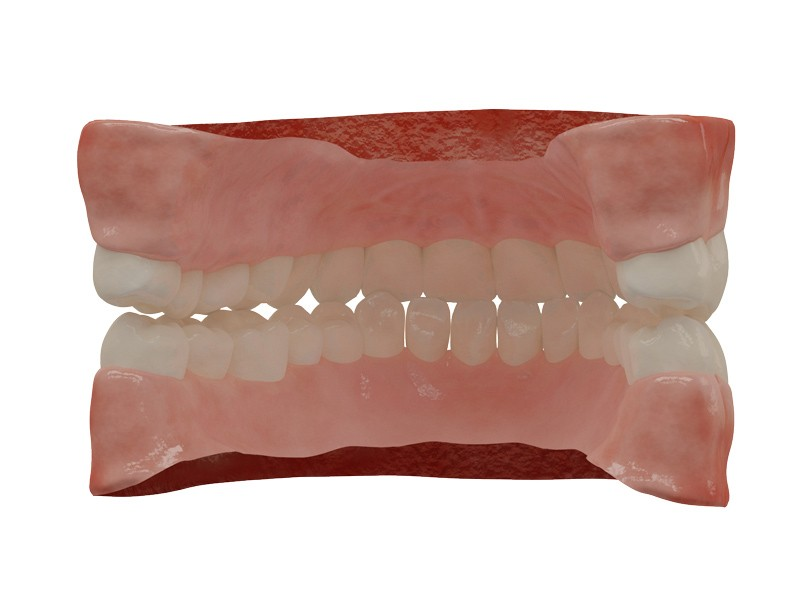 Human Teeth preview image 2